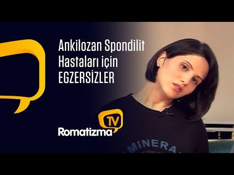 Bugün ankilozan spondilit hastalarda uyguladığımız egzersizlere beraberce bir göz atacağız. Bildiğiniz gibi ankilozan spondilit kronik bir hastalıktır.