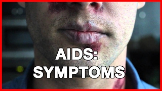 SUBSCRIBE TO OUR CHANNEL FOR MORE VIDEOS. SHARE THIS VIDEO ON FACEBOOK AND TWITTER.Source:Peter samshttp://www.article24.net/a/6/aids-symptoms-and-treatment-of-aids.html