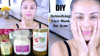 DIY Detoxifying Face Mask! ♥ (For Acne, Skin Discoloration, Scars)