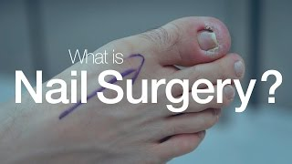 What is Nail Surgery?