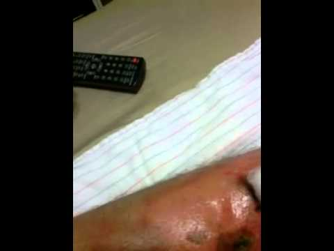 how to drain mrsa abscess