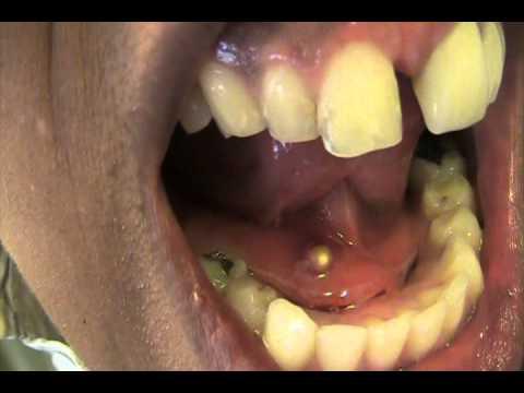 Pige har kæmpe bums i munden!