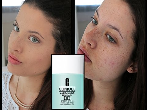 ♡ NEW : Clinique BB Cream : Anti-Blemish Solutions  ♡