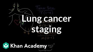 Health professionals use special terminology referred to as stages to concisely communicate the progression of cancer disease. Learn how cancer is classified ...