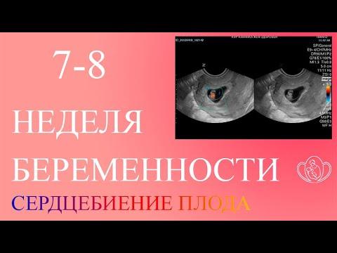 Узи 12 недель беременности сердцебиение