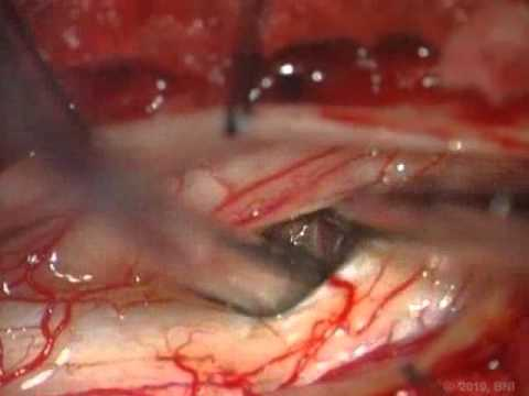 Spinal Cord Intramedullary Cavernous Malformations- Surgical Approaches - Video 2