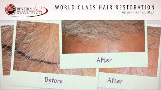 Hair Transplant (FUT) with Gray Hair results-Before and After video