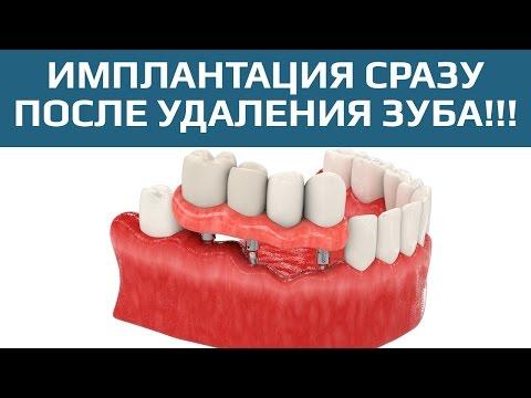 Одноэтапная имплантация зубов