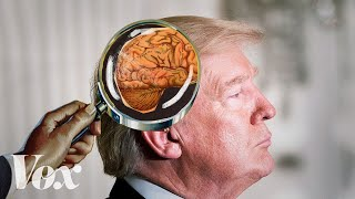 Video The awkward debate around Trump's mental fitness MP3, 3GP, MP4, WEBM, AVI, FLV Oktober 2018