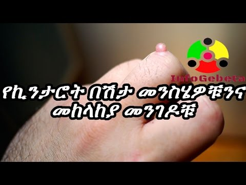 Ethiopia Warts Treatments and Home Remedies - ኪንታሮት