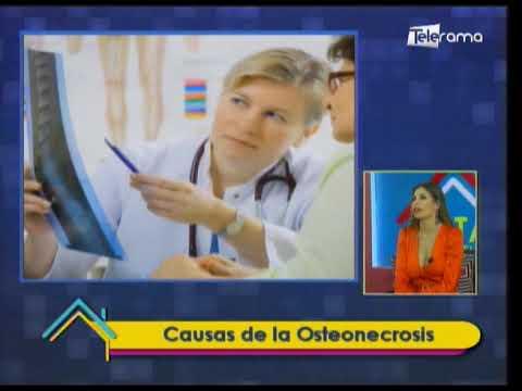 Causas de la Osteonecrosis