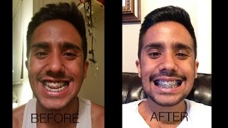 Double Jaw Surgery- Pre and Post OP(Days 1-24)