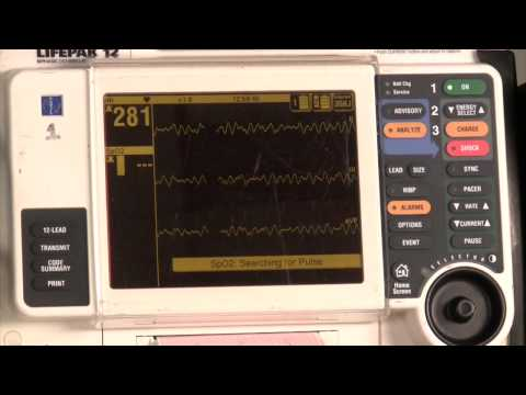 Defibrillator usage and paddle placement