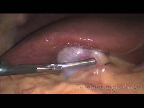 surgery - Dr. Lowe explains how to perform a laparoscopic gallbladder removal surgery. Please visit our website or call for more information. http://www.carolinasurgic...