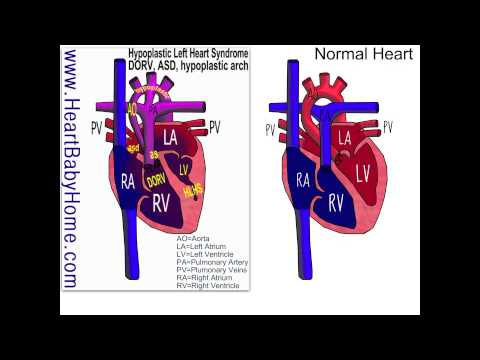 36 Hypoplastic Left Heart Syndrome with DORV, ASD, aortic stenosis