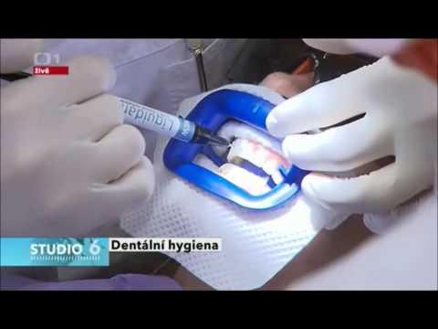Ordinační a domácí bělení zubů   Klinika Mediestetik