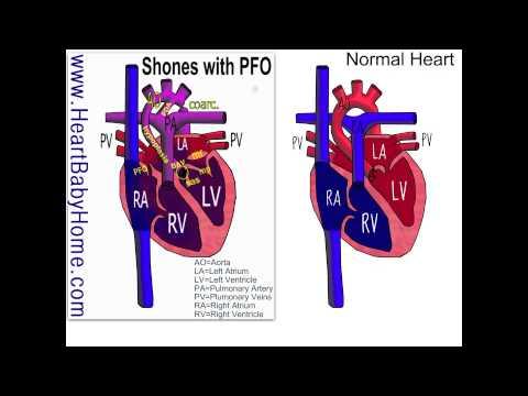 37 Shones Complex with severe coarctation of the aorta