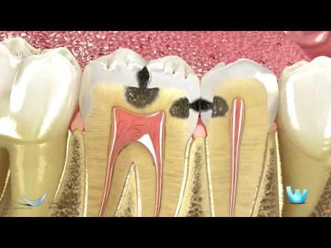 Uso de cadena elastomerica para cerrar espacios en los dientes