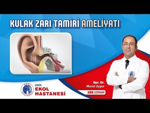 Kulak Zarı Tamiri - Opr. Dr. Murat Uygur - İzmir Ekol Hastanesi