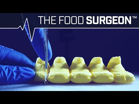 The Food Surgeon Peep Laparotomy