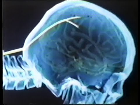 The Puppet Masters (1994) Trailer (VHS Capture)
