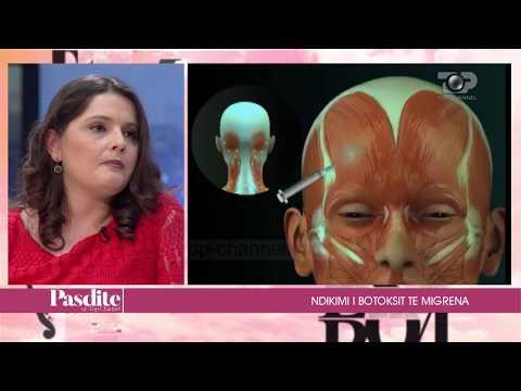 Pasdite ne TCH, Ndikimi I botoksit te migrena, Pjesa 1 - 18/05/2017