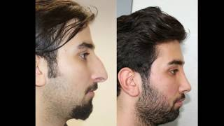 Mustafa Ali Yanık burun estetiği şikayet i ile başvuran hastaları ve sonuçları