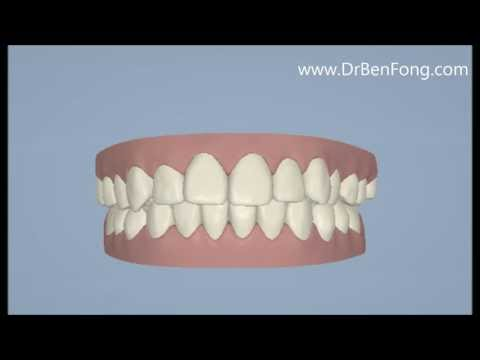 Invisalign Results for Mary L.  Before & After   www.invisalignresults.ca