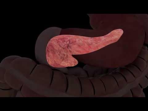 Ultrasound of the Pancreas