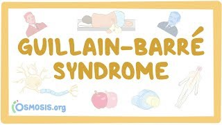 Guillain-Barre Syndrome - causes, symptoms, diagnosis, treatment, pathology