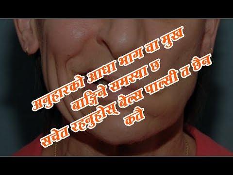 (Dr. Srijam Timsina | असावधानी गरे दोहोरीन सक्छ बेल्स पाल्सी ...2 min, 29 sec.)