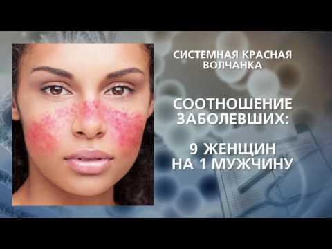 Системная красная волчанка - DomaVideo.Ru