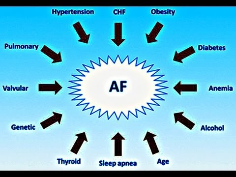 Stroke Prevention in Atrial Fibrillation – Cardiology Presentation
