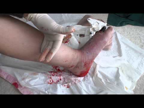 Amputation - https://www.facebook.com/pages/Amputee-OT/601887559840195 GRAPHIC: shows blood and necrotic tissue aka gangrene. I explain why I am choosing TTA (trans-tibia...