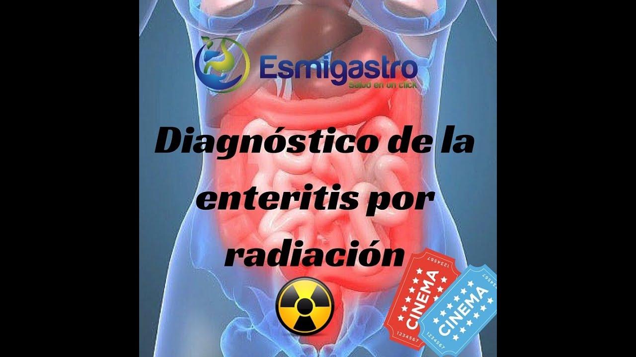 Diagnóstico de la enteritis por radiación