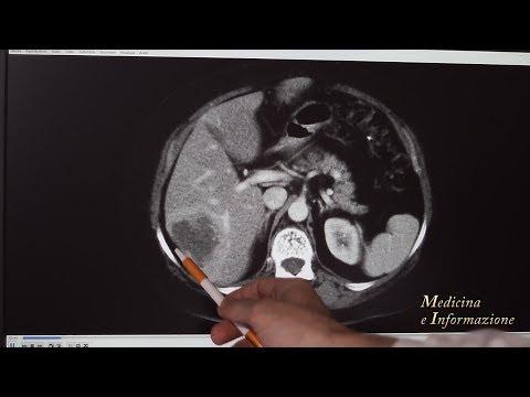 Chirurgia del Fegato per tumori e metastasi: conservativa e mininvasiva