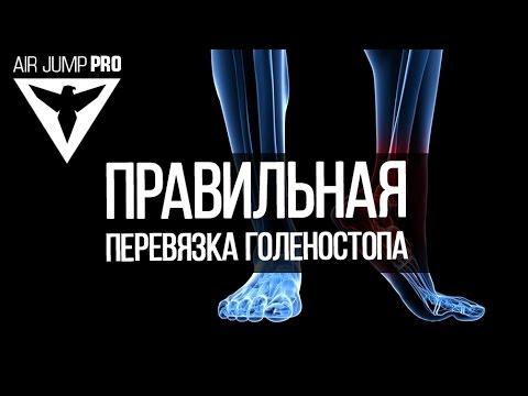 Растяжение голеностопа ноги | Наложение правильной повязки