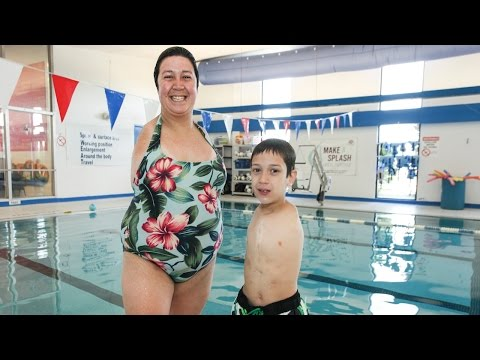 live - Born Without Arms: Inspirational Mother and Son Live Life to The Full SUBSCRIBE: http://bit.ly/Oc61Hj Linda Bannon and her son Timmy suffer from Holt Oram - a rare genetic condition which...