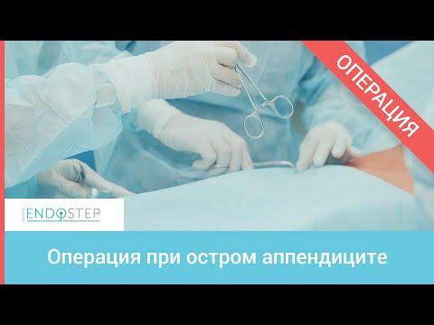 Операция при остром аппендиците
