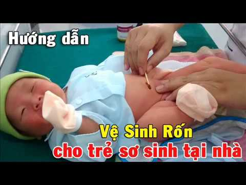 Cách vệ sinh chăm sóc rốn cho trẻ sơ sinh