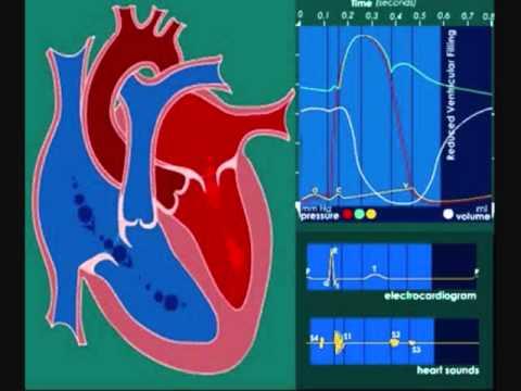 Soplos cardíacos