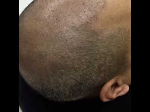 SMC offers The Best Scalp Micropigmentation Online Training Program and Certification Course: Become a Certified Scalp T…