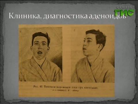Видео с Михаилом Денисовым