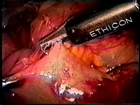 Laparoscopic lysis of adhesions for SBO - UCSF  Lawrence Way, MD