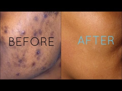spots - Dark Spot Skincare Routine For Oily to Combination Skin Facial Howto at home teaching you how to remove white heads, how to use an extractor, your masks, and...