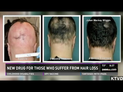 Bone Marrow Drug Regrows Hair In Some Alopecia Patients