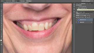 Fast & Easy Way to Whiten Teeth in Photoshop