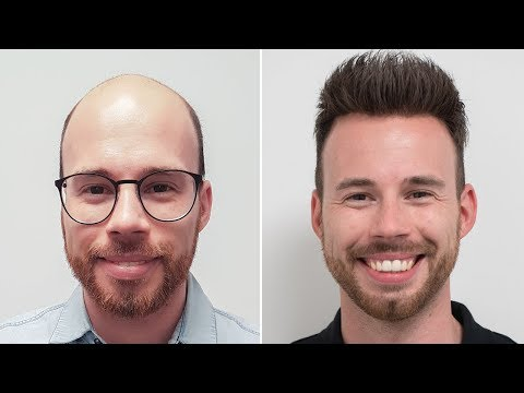 Hairstyles for short hair - Trendy Short Hair Style For Men  Transformation mit Haarsystem  Hairsystems Heydecke
