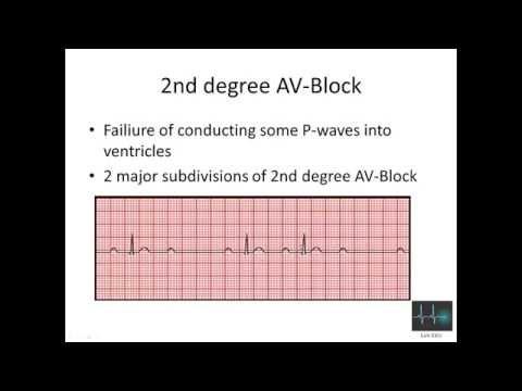 ECG cardiac arrhythmias