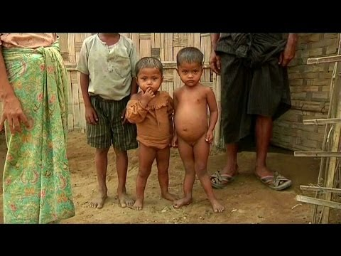 Children in Arakan State face malnutrition after aid workers' exodus